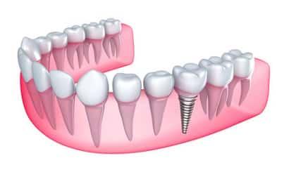 Grille et salaire minimum prothésiste dentaire 2013 conventionnel
